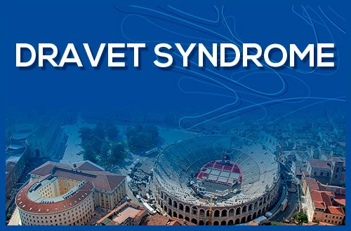 Events Horizons for Dravet Syndrome